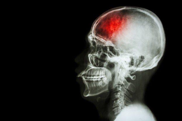 Brain Injury from Sports